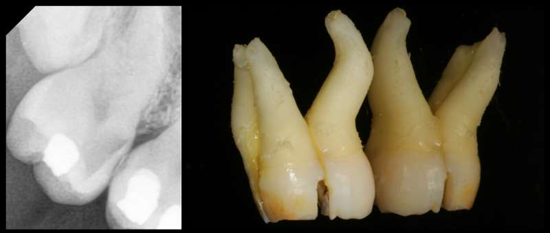 Zubní chirurgie